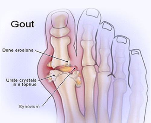 What Happens to Your Body When You Have Gout?