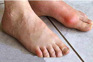 Gout Diagnose