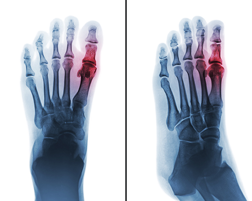 What Men Need to Know About Gout