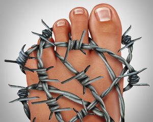 Top Signs You May Want to See a Doctor for Gout
