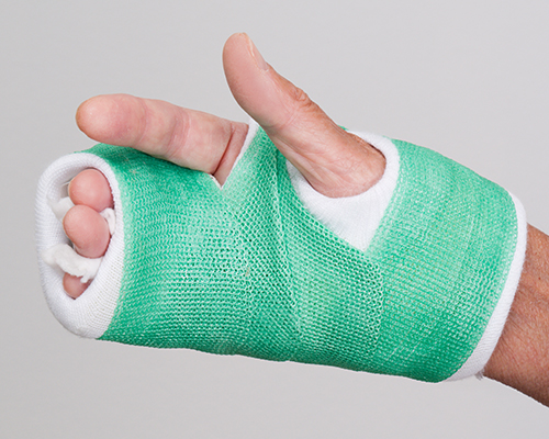 joint damage from gout hand in a green cast