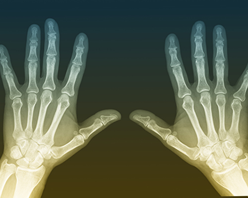 maintaining bone and joint health with gout