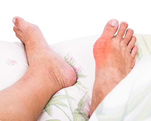 gout symptoms in adults