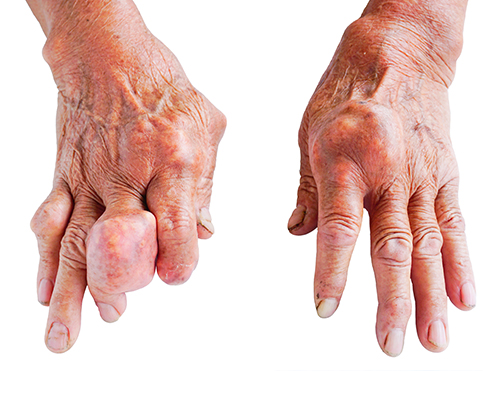 uncontrolled gout